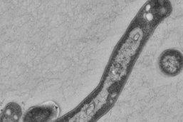 Une simple respiration pourrait transmettre la tuberculose